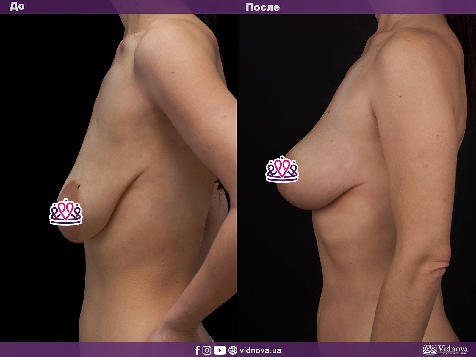 Подтяжка груди: Фото ДО и ПОСЛЕ - Пример №8-3 - Клиника Vidnova