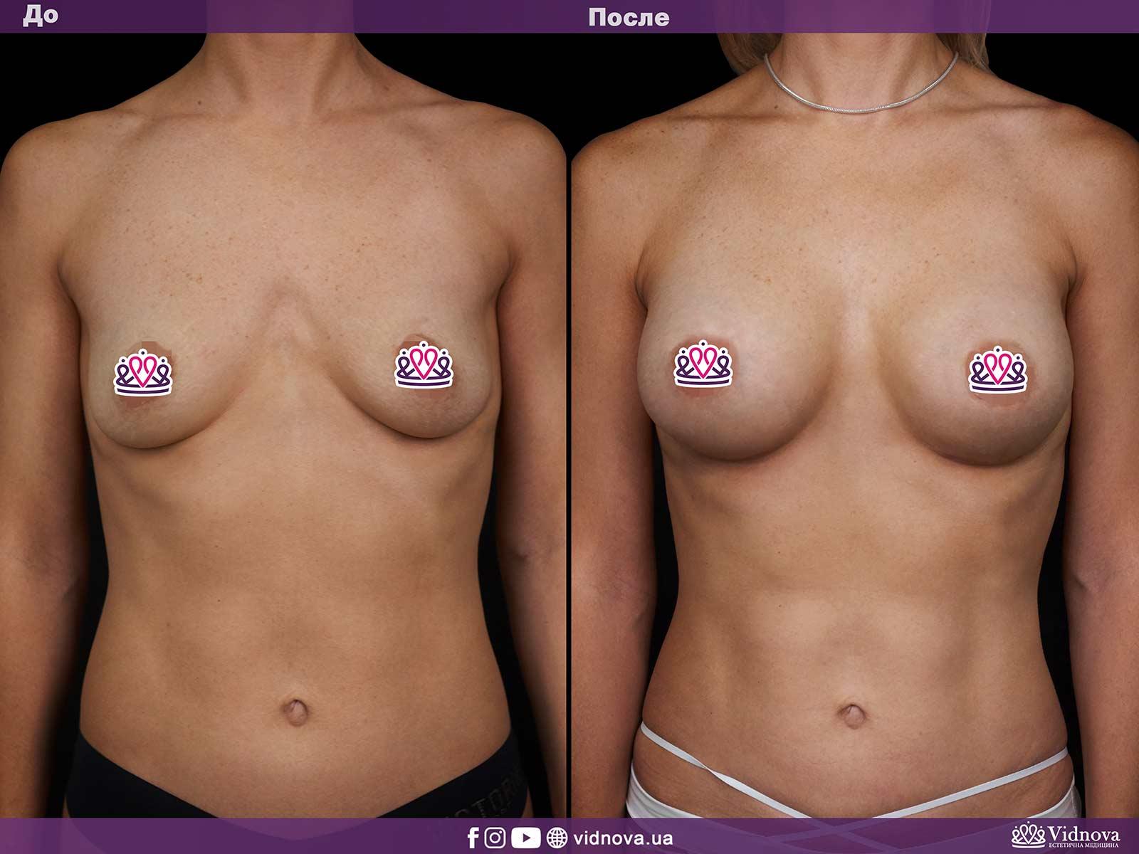 Увеличение груди: Фото ДО и ПОСЛЕ - Пример №4-1 - Клиника Vidnova