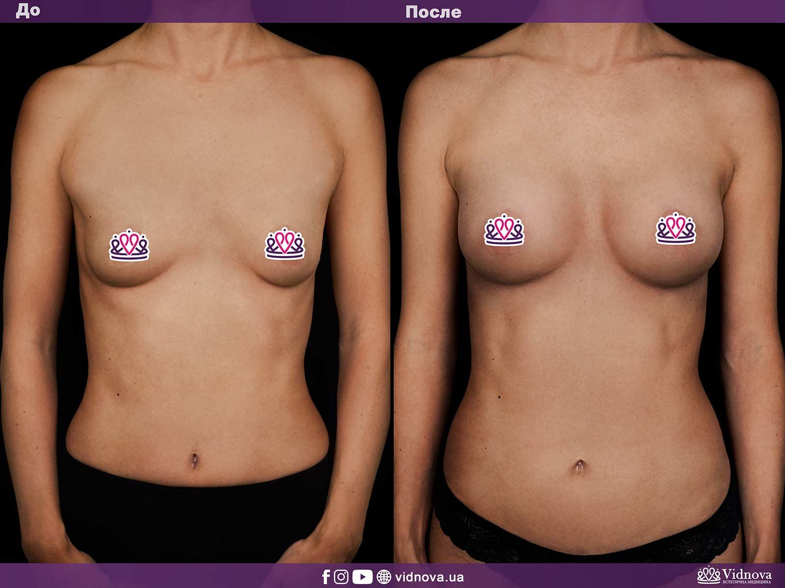 Увеличение груди: Фото ДО и ПОСЛЕ - Пример №2-1 - Клиника Vidnova