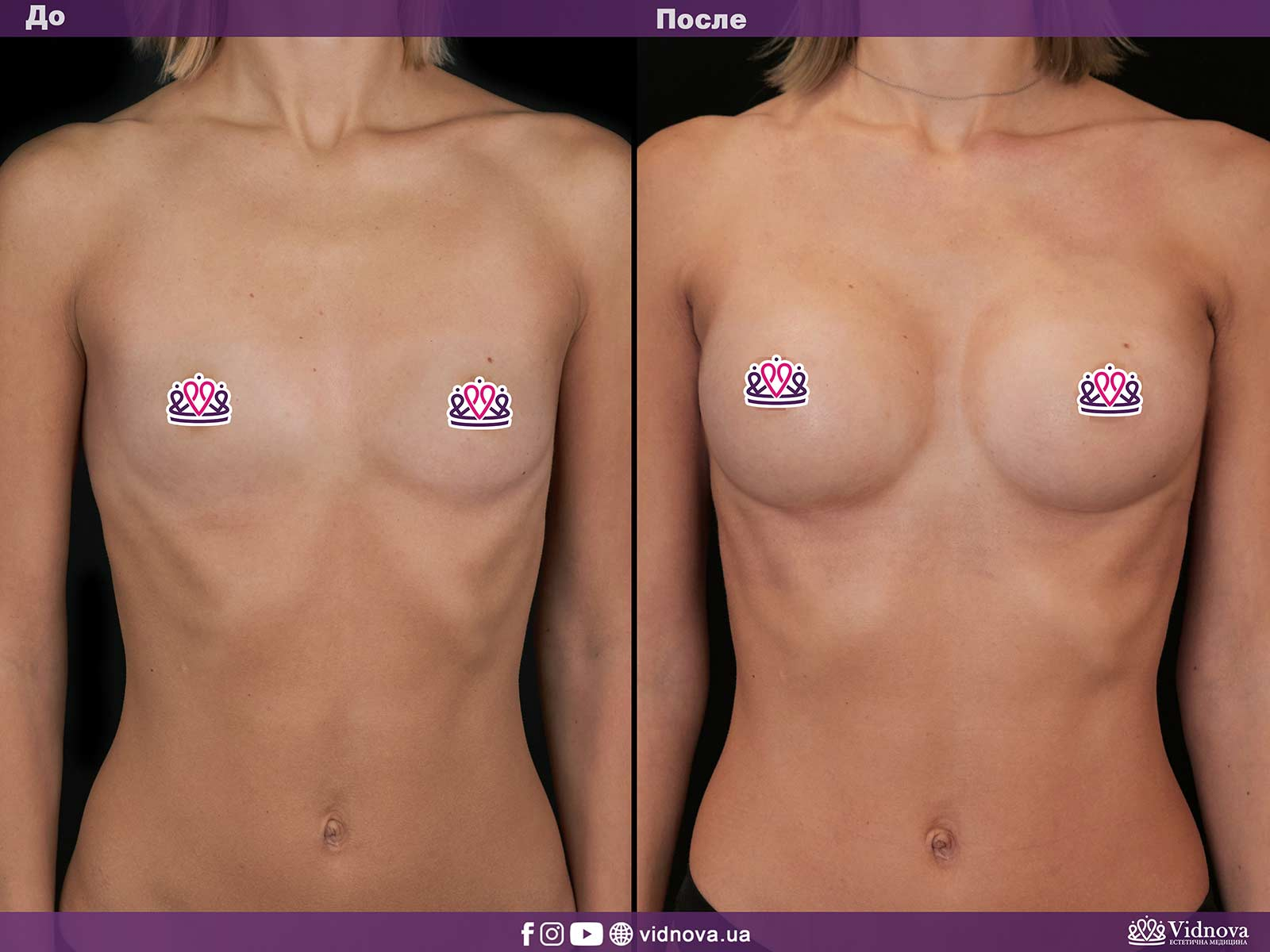 Увеличение груди: Фото ДО и ПОСЛЕ - Пример №13-1 - Клиника Vidnova