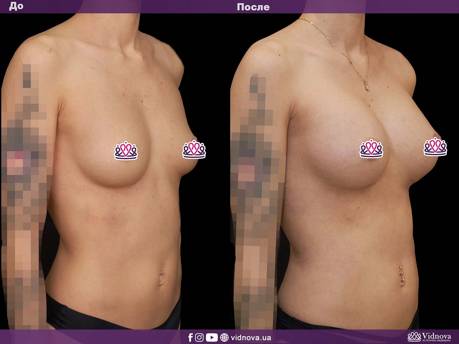 Увеличение груди: Фото ДО и ПОСЛЕ - Пример №1-2 - Клиника Vidnova