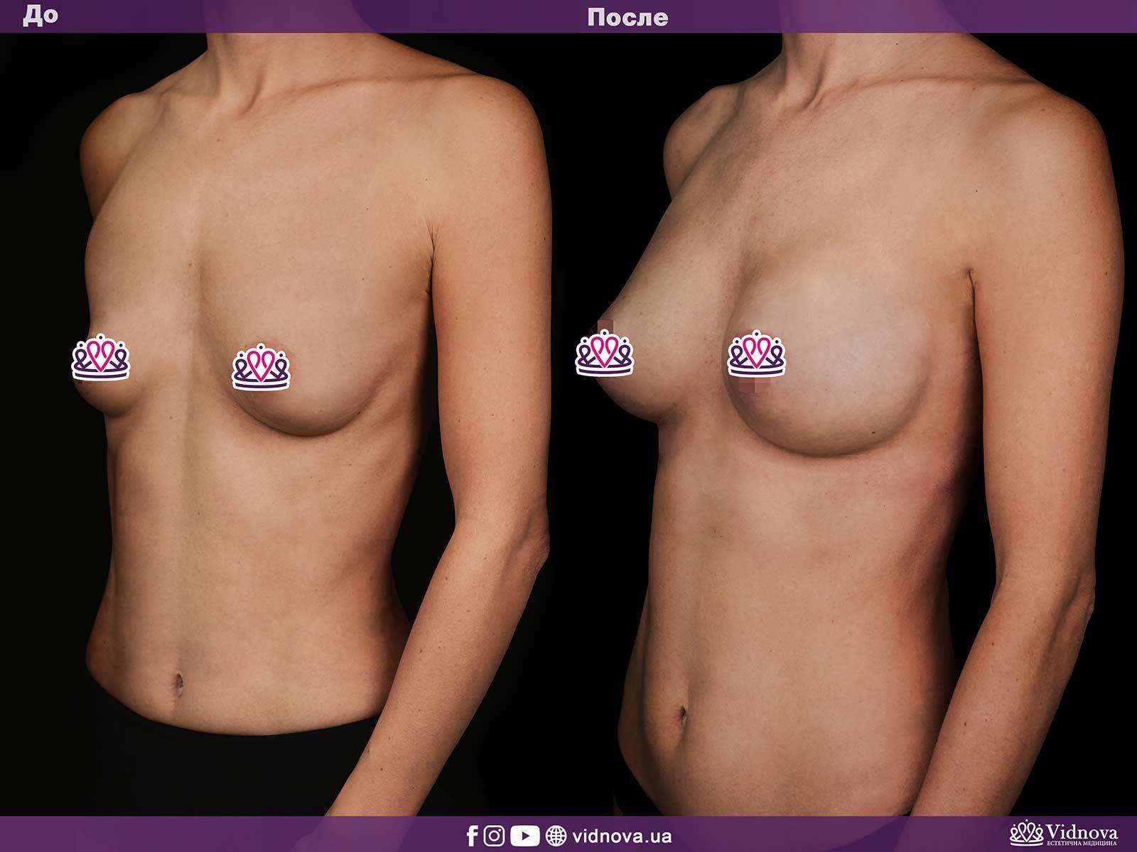 Увеличение груди: Фото ДО и ПОСЛЕ - Пример №17-2 - Клиника Vidnova