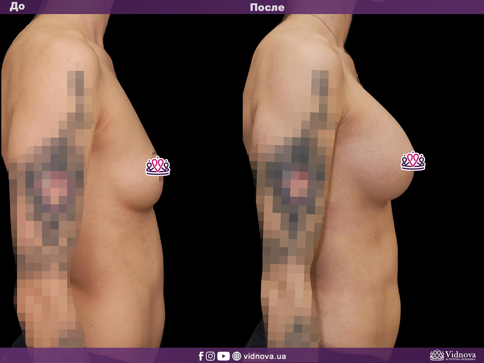 Увеличение груди: Фото ДО и ПОСЛЕ - Пример №1-3 - Клиника Vidnova