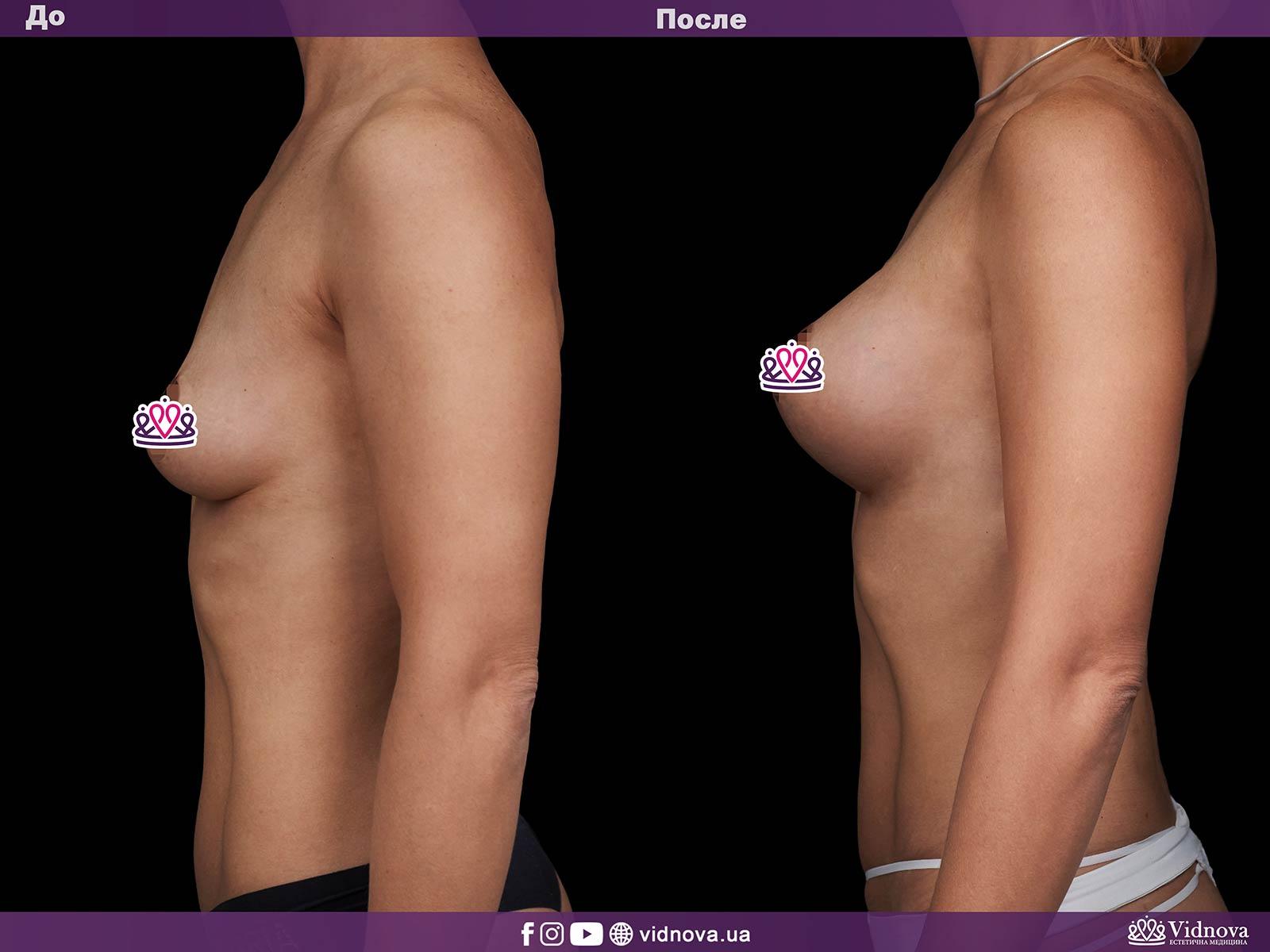Увеличение груди: Фото ДО и ПОСЛЕ - Пример №10-3 - Клиника Vidnova