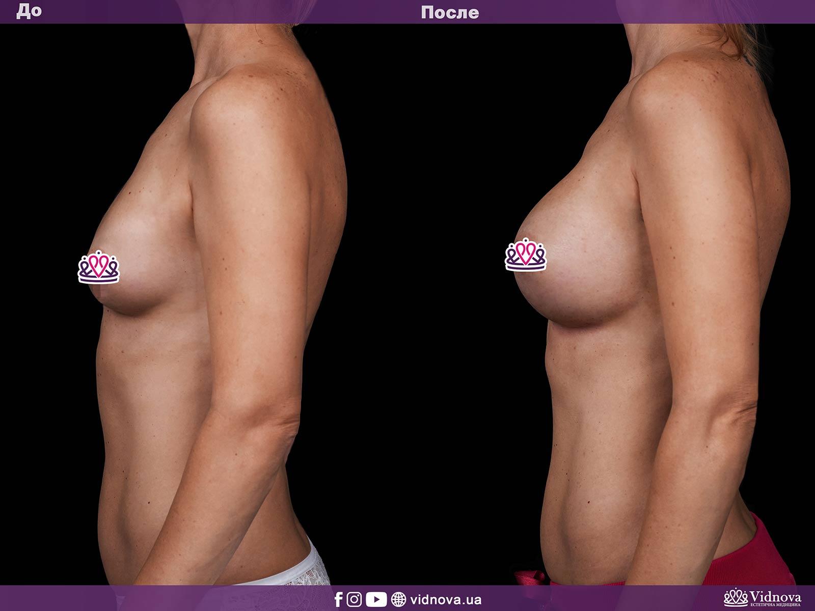 Увеличение груди: Фото ДО и ПОСЛЕ - Пример №20-3 - Клиника Vidnova