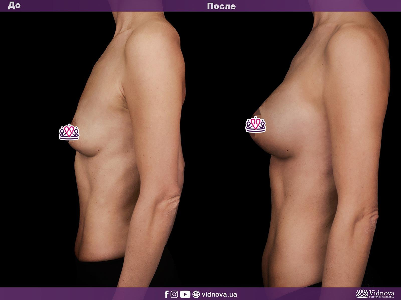 Увеличение груди: Фото ДО и ПОСЛЕ - Пример №17-3 - Клиника Vidnova
