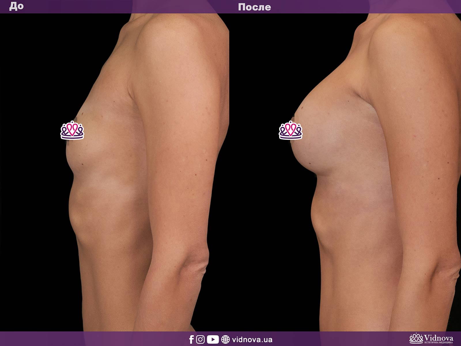 Увеличение груди: Фото ДО и ПОСЛЕ - Пример №13-3 - Клиника Vidnova