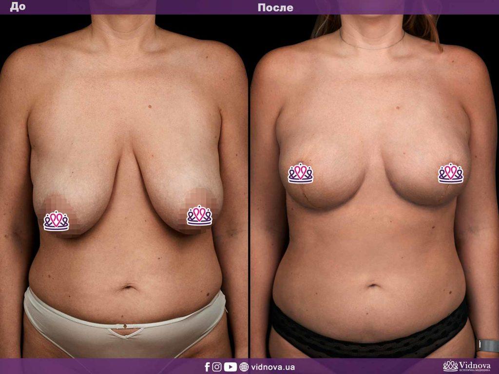 Подтяжка груди (мастопексия) Maket grud vidnova 1 s 1024x768 - клиника VIdnova