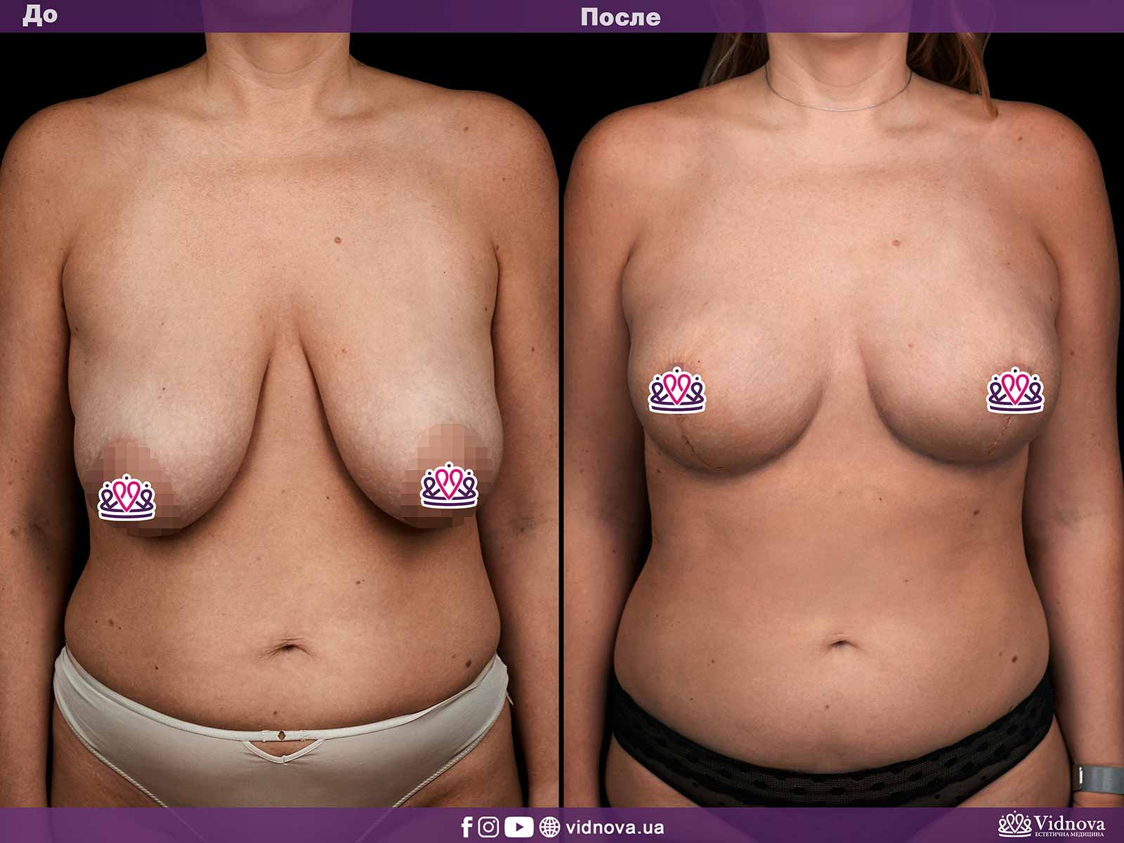 Подтяжка груди: Фото ДО и ПОСЛЕ - Пример №4-1 - Клиника Vidnova