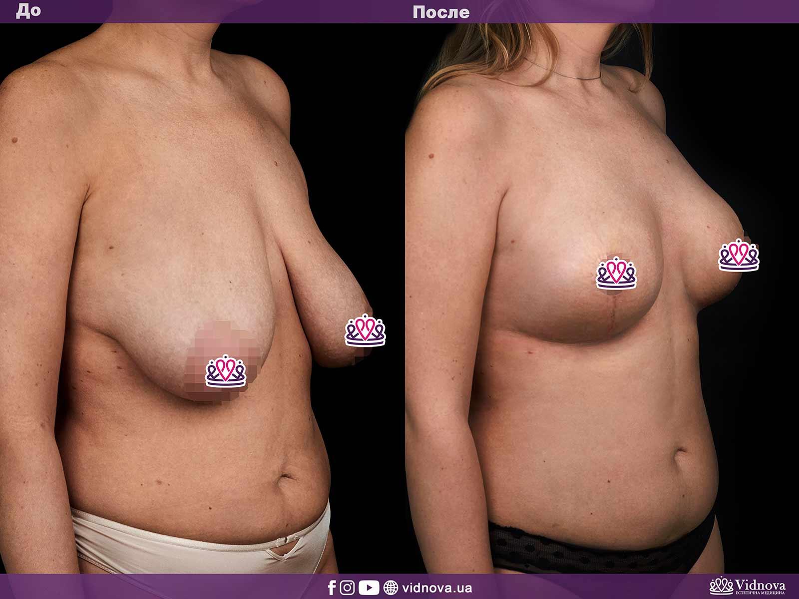 Подтяжка груди: Фото ДО и ПОСЛЕ - Пример №4-2 - Клиника Vidnova