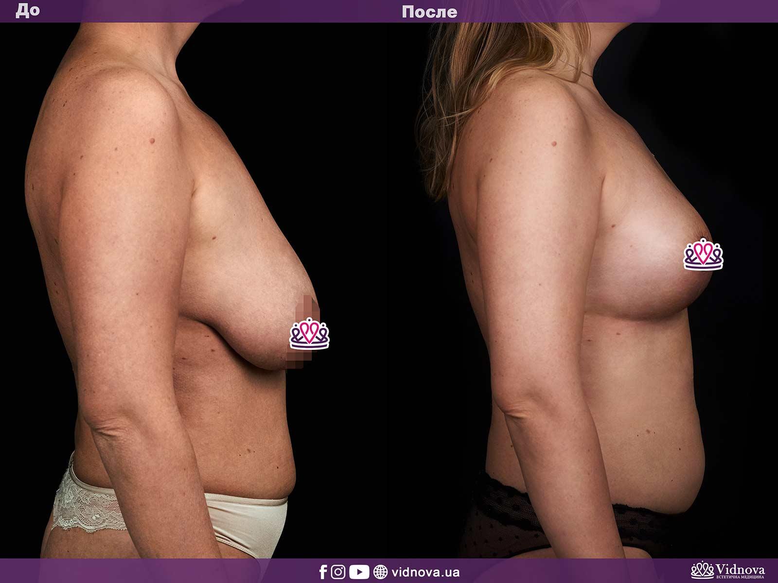 Подтяжка груди: Фото ДО и ПОСЛЕ - Пример №4-3 - Клиника Vidnova