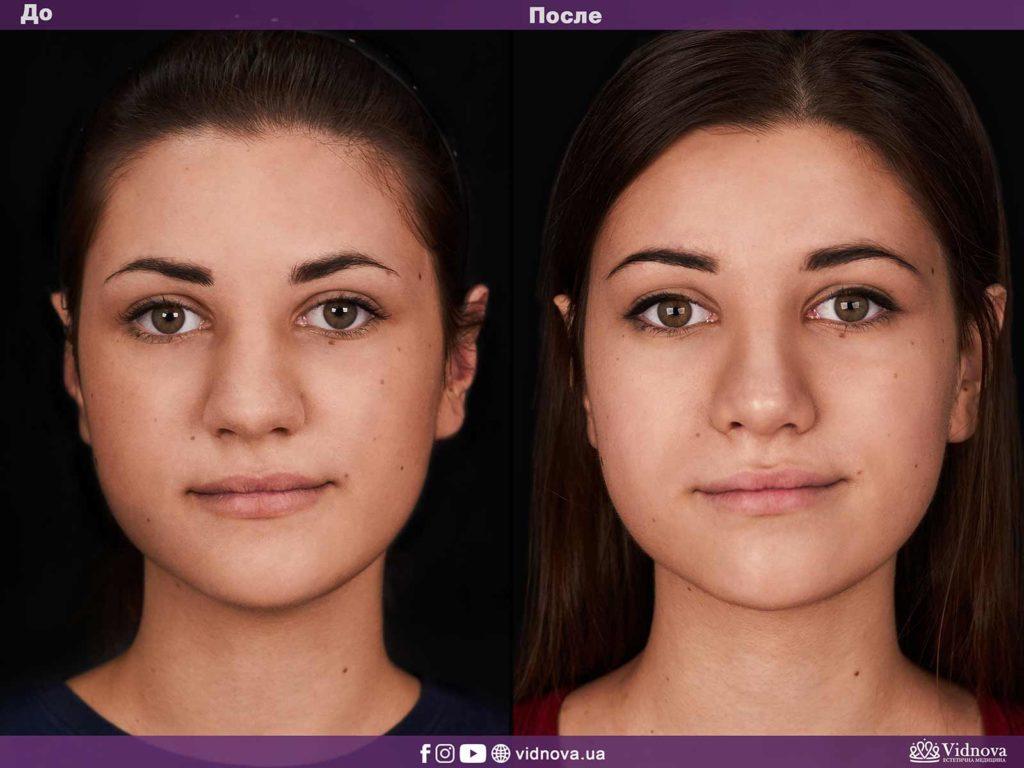 Пластика носа (ринопластика) Maket rino vidnova 1 s 1024x768 - клиника VIdnova