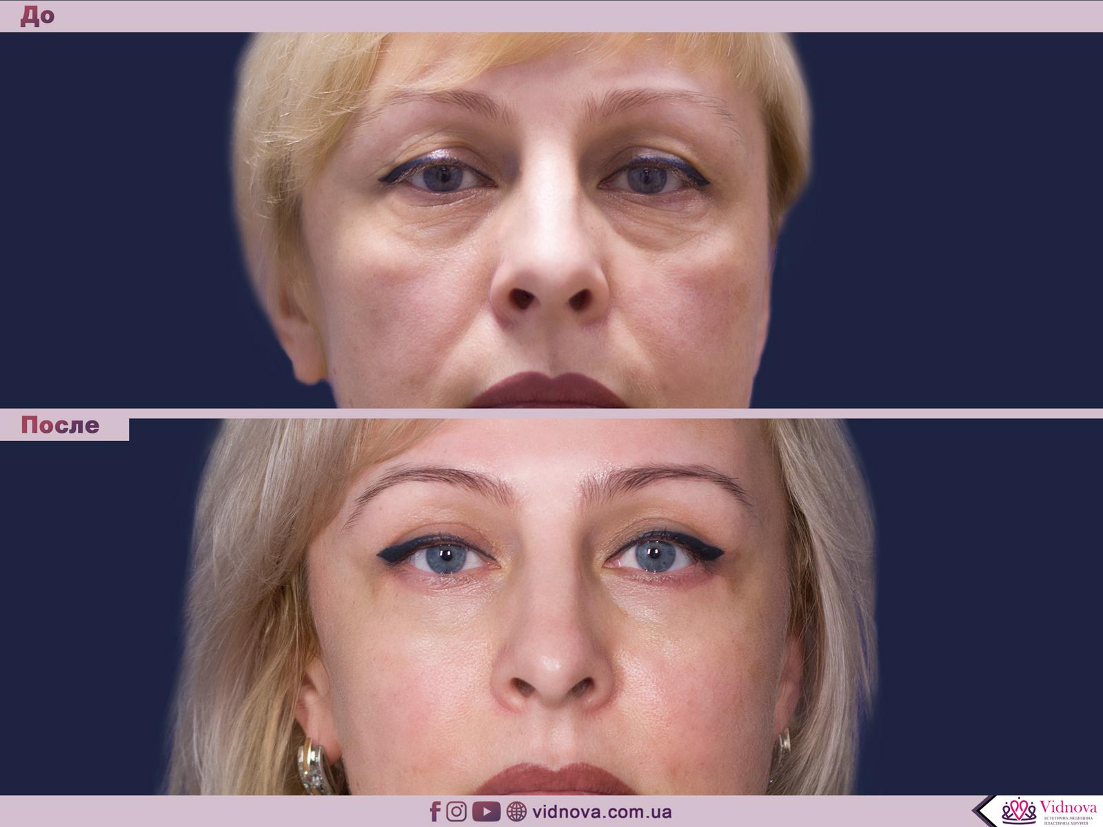Блефаропластика: Фото До и После - Пример №51-1 - Клиника Vidnova