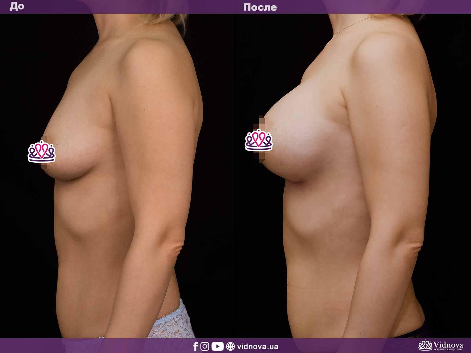 Увеличение груди: Фото ДО и ПОСЛЕ - Пример №18-3 - Клиника Vidnova