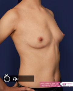Грудь после маммопластики: через сутки, через месяц, через год do 240x300 - клиника VIdnova