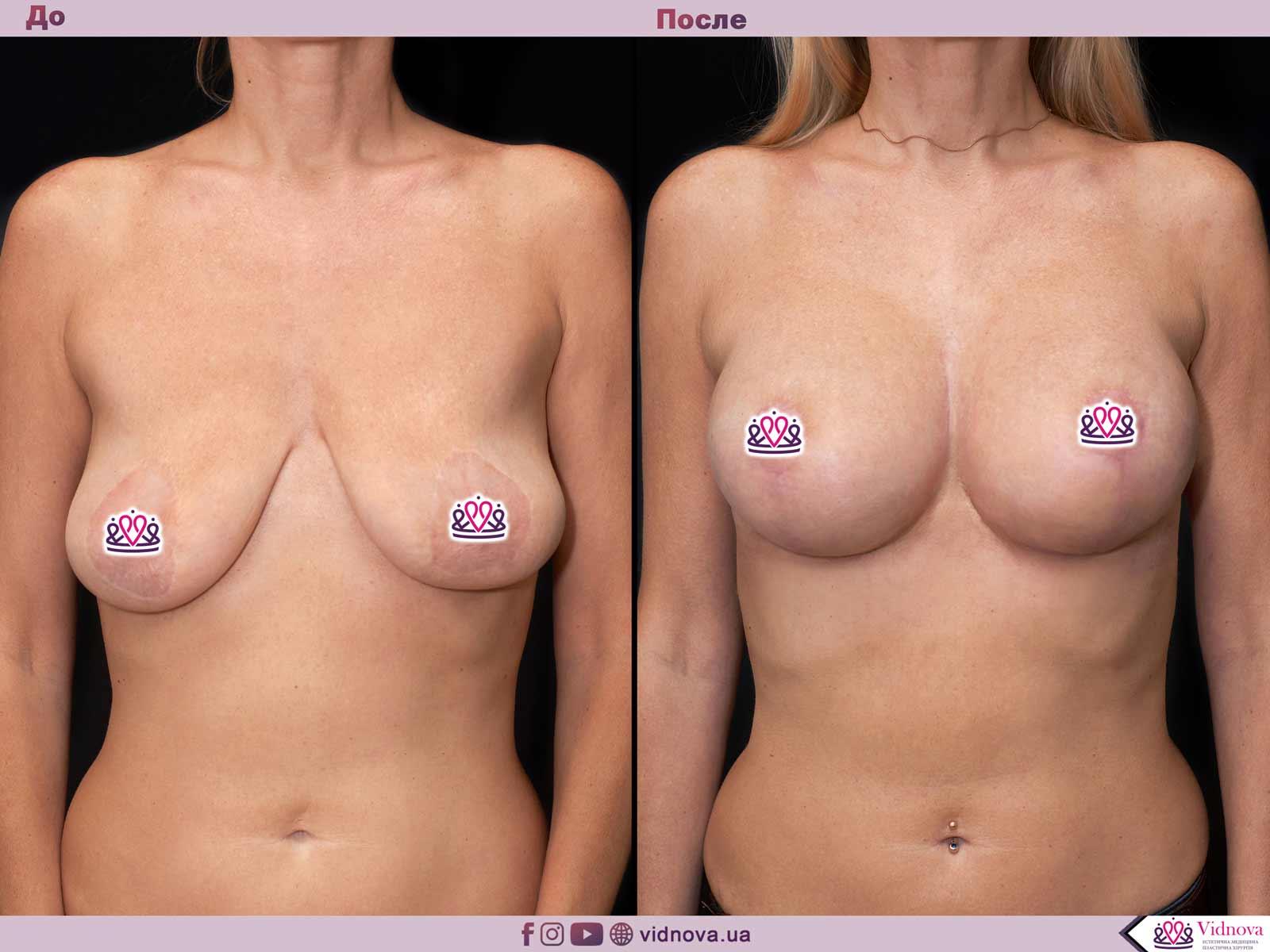 Подтяжка груди: Фото ДО и ПОСЛЕ - Пример №20-1 - Клиника Vidnova