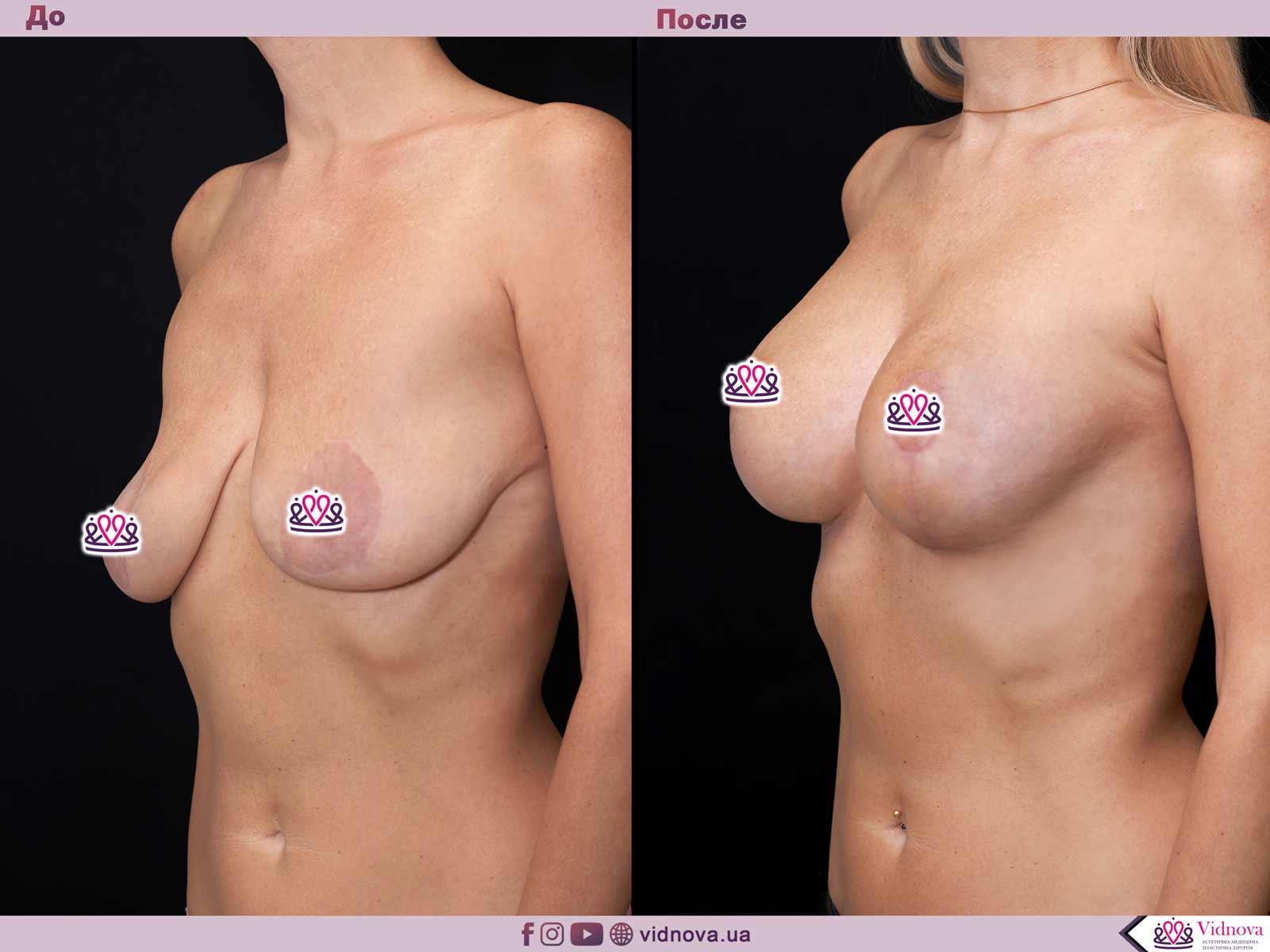 Подтяжка груди: Фото ДО и ПОСЛЕ - Пример №20-2 - Клиника Vidnova