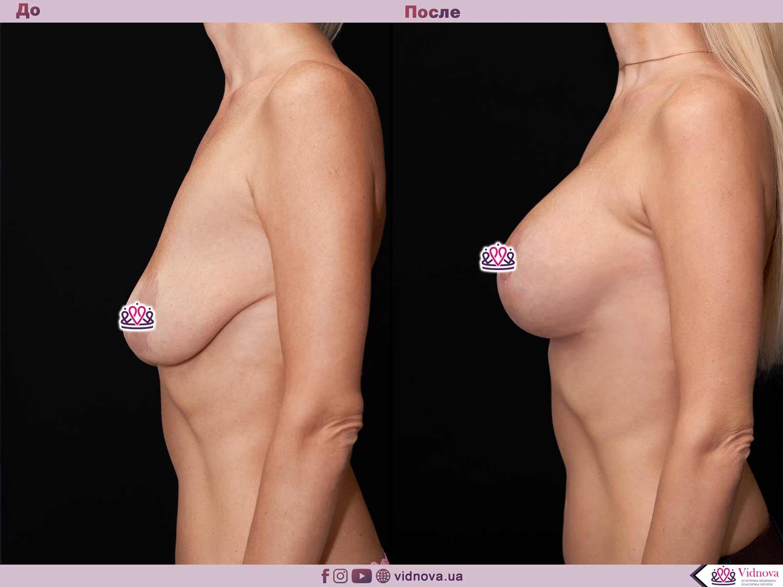 Подтяжка груди: Фото ДО и ПОСЛЕ - Пример №20-3 - Клиника Vidnova