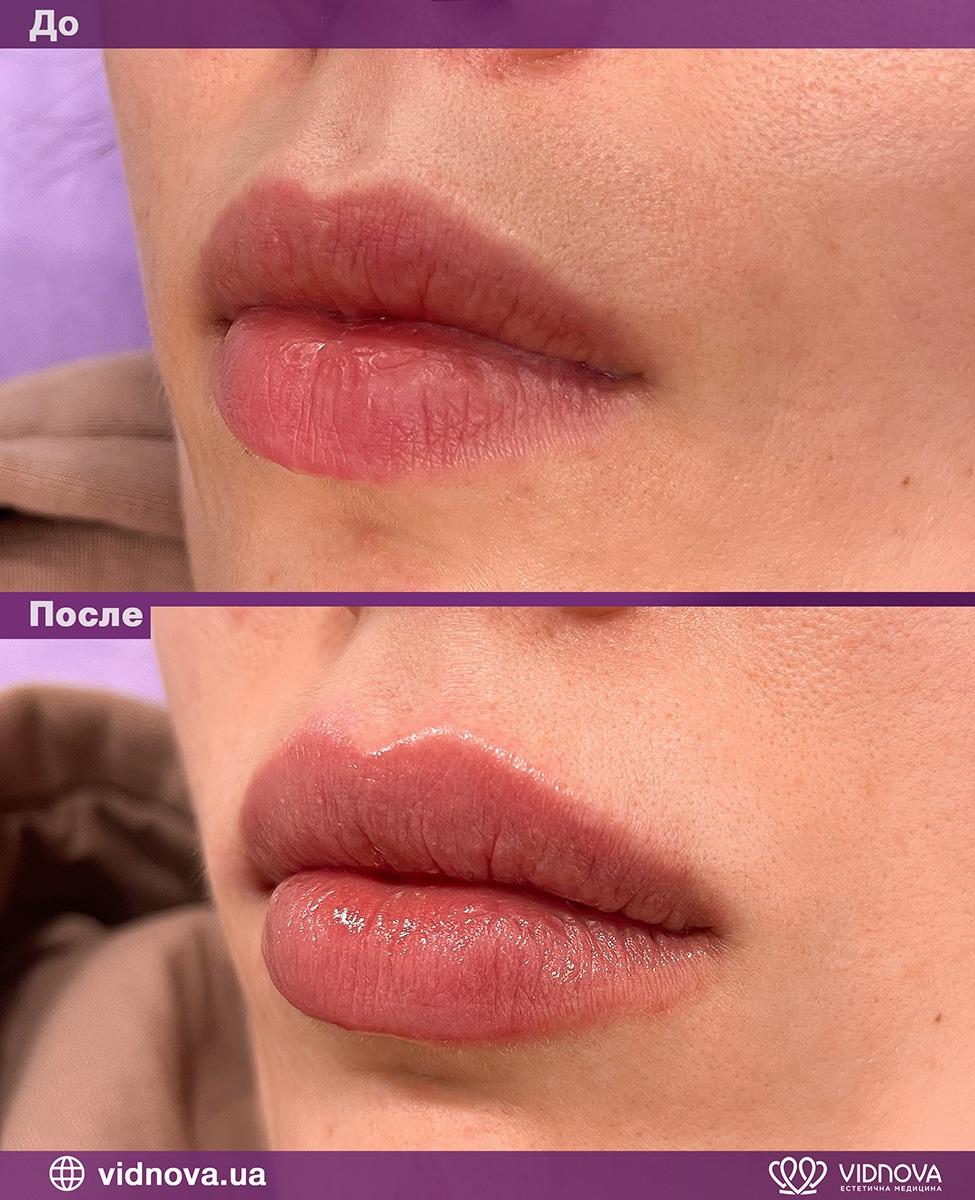 Увеличение губ: Фото До и После - Пример №2-1 - Клиника Vidnova