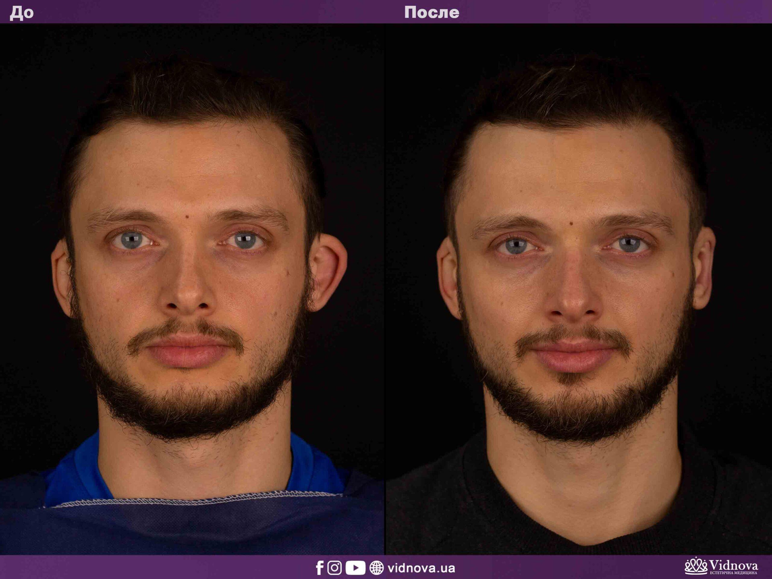Отопластика: Фото До и После - Пример №5-1 - Клиника Vidnova