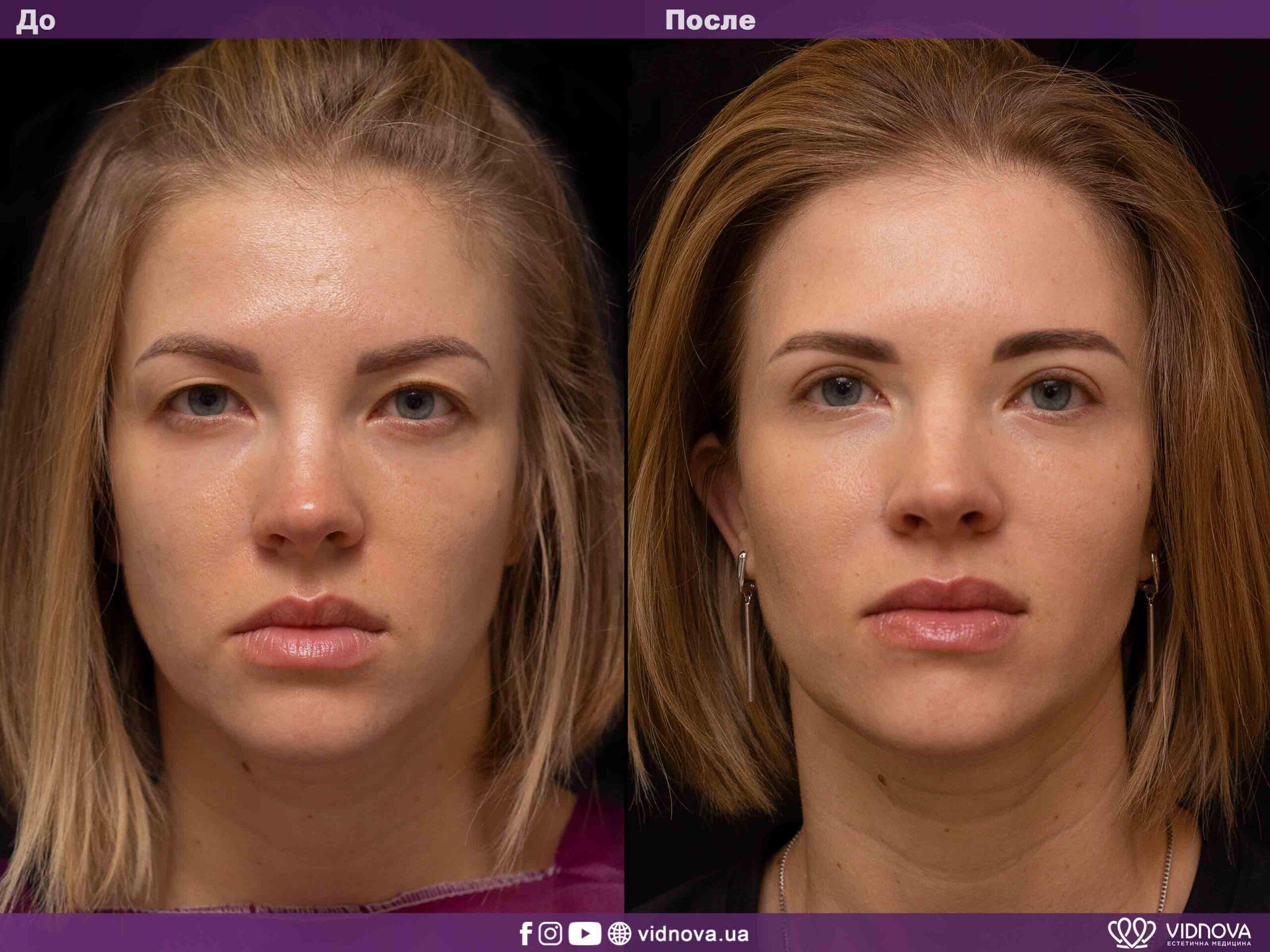 Блефаропластика: Фото До и После - Пример №6-1 - Клиника Vidnova