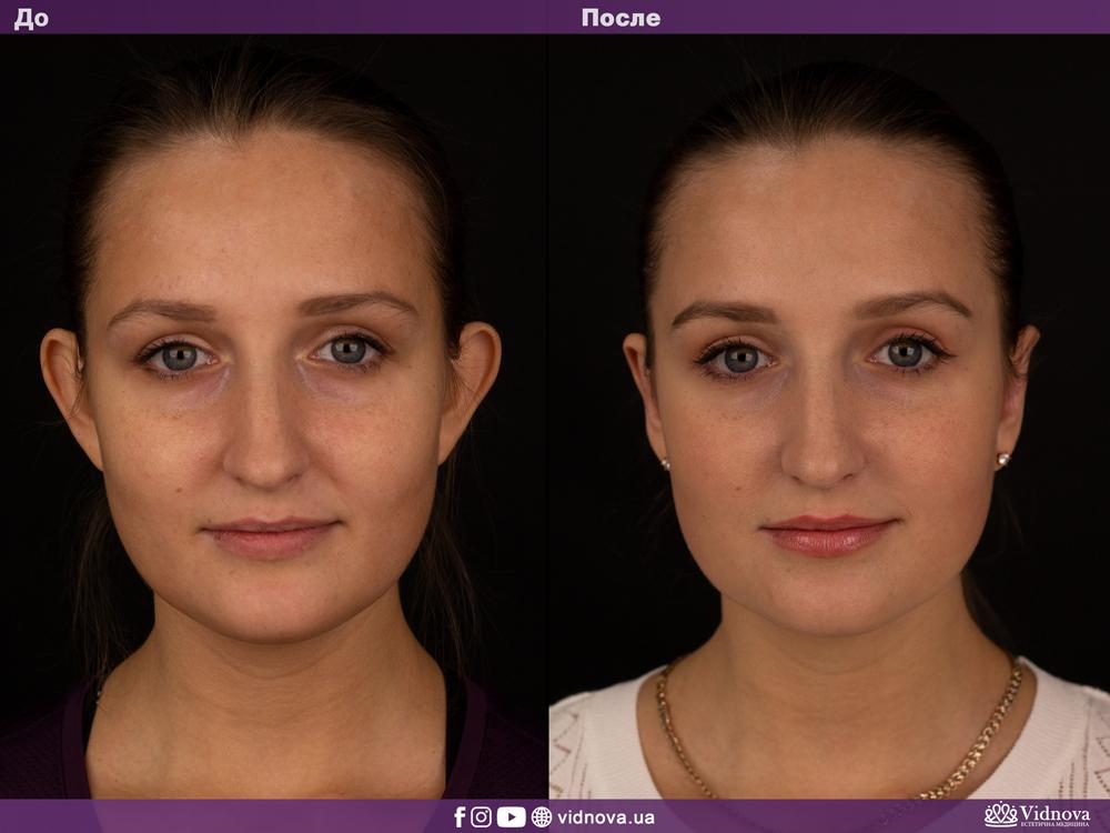 Отопластика: Фото До и После - Пример №1-1 - Клиника Vidnova