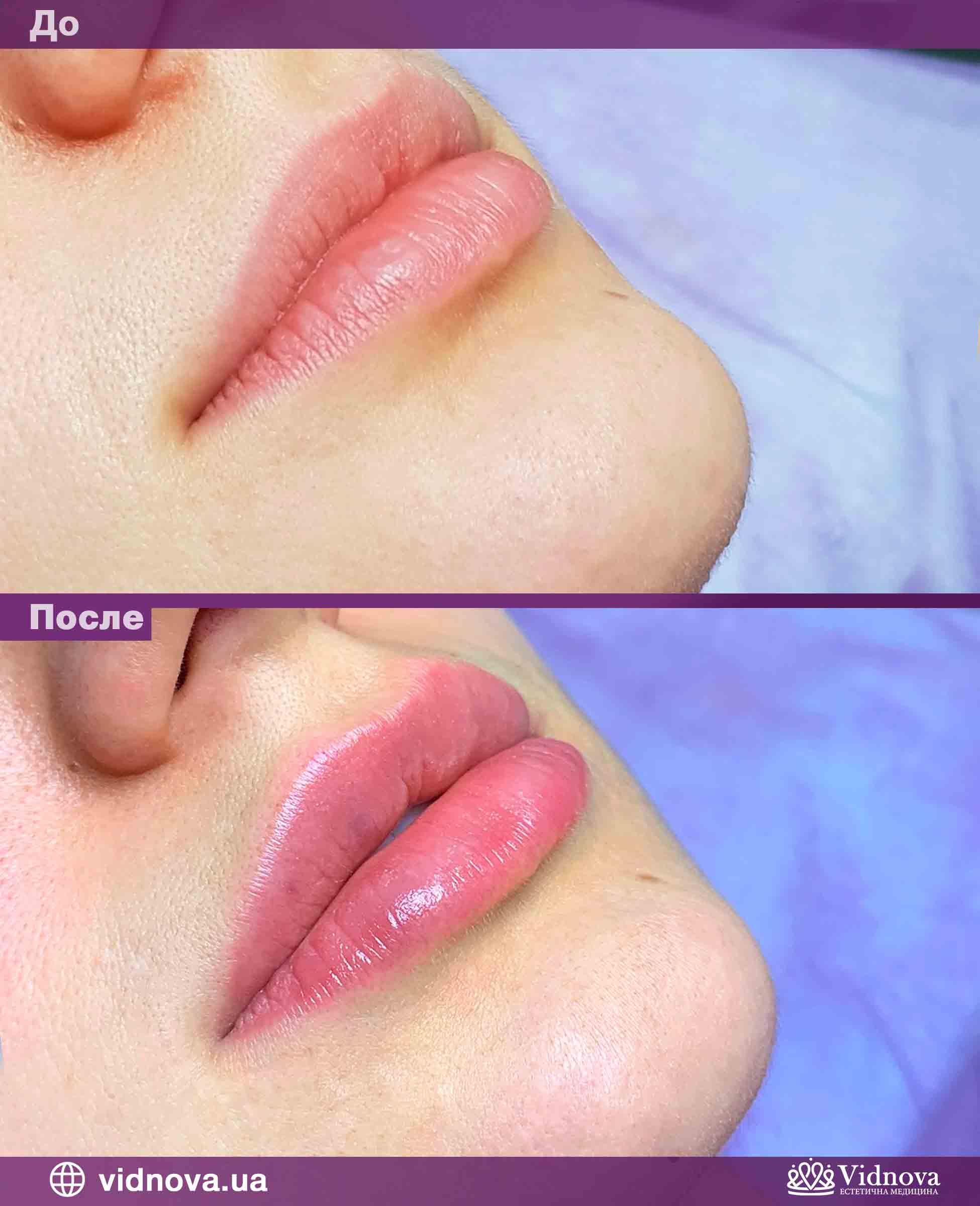 Увеличение губ: Фото До и После - Пример №6-2 - Клиника Vidnova