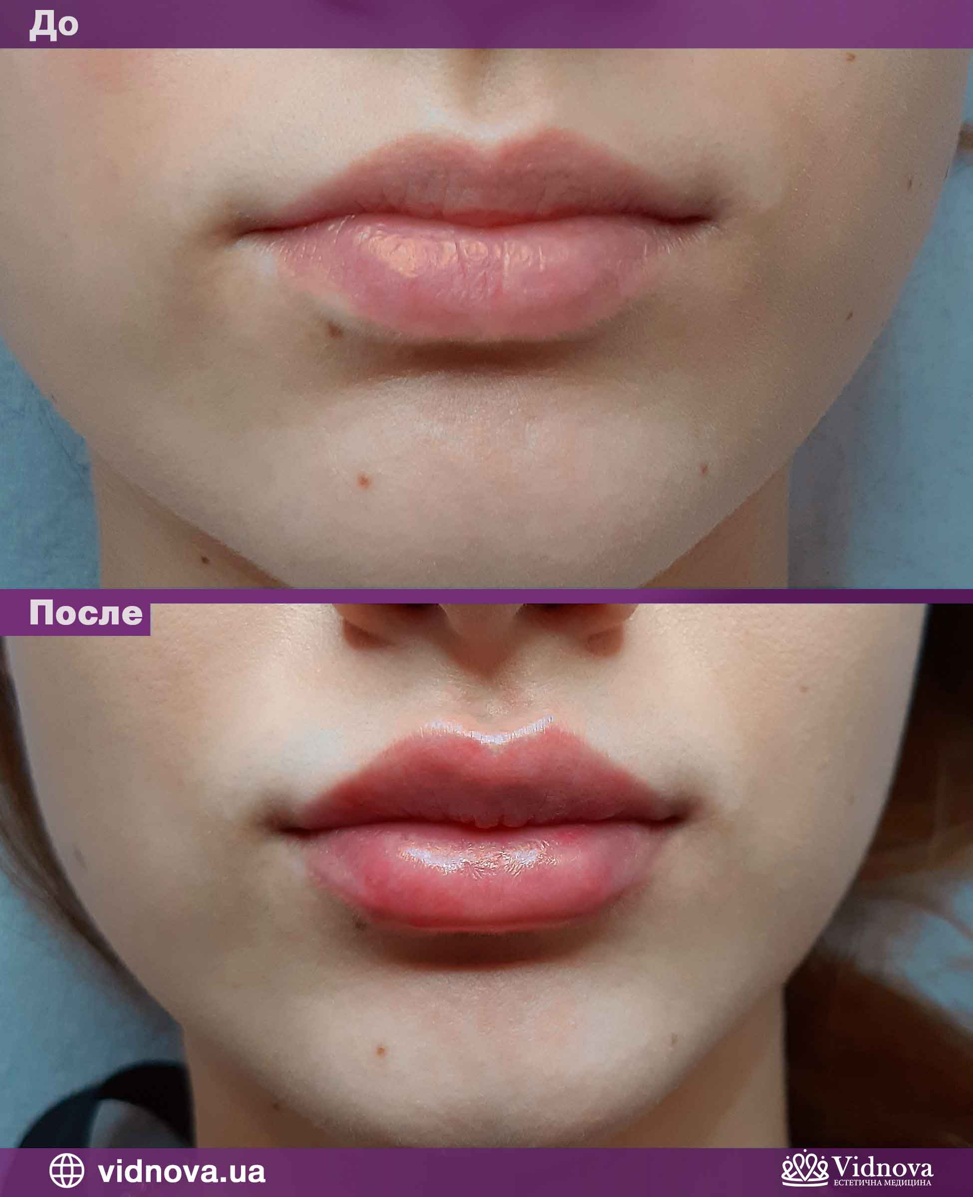 Увеличение губ: Фото До и После - Пример №7-1 - Клиника Vidnova