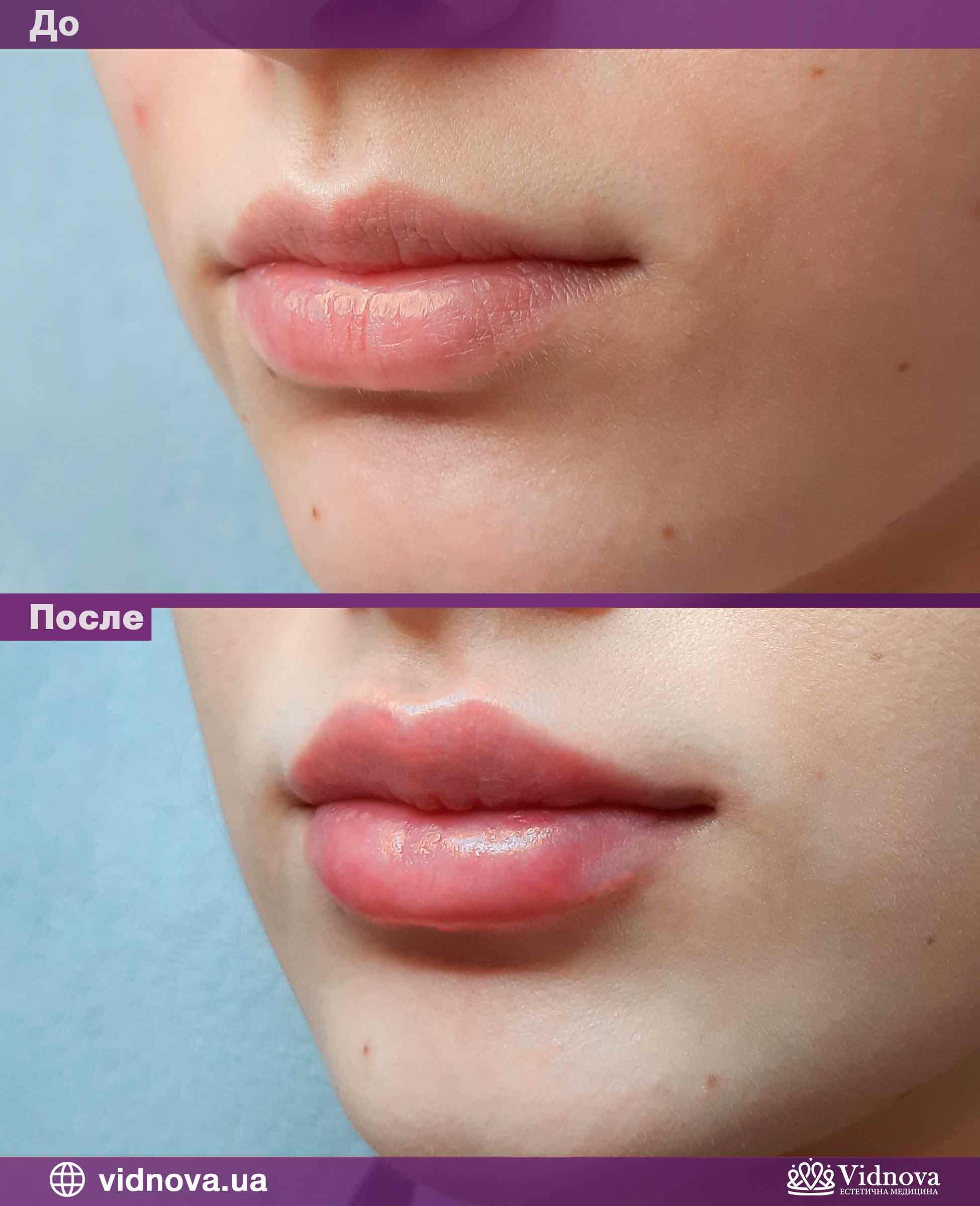 Увеличение губ: Фото До и После - Пример №7-2 - Клиника Vidnova