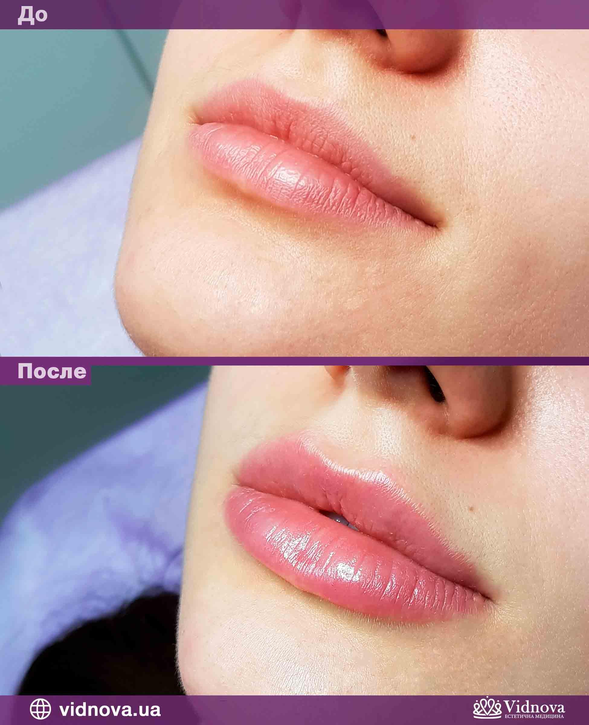 Увеличение губ: Фото До и После - Пример №6-1 - Клиника Vidnova