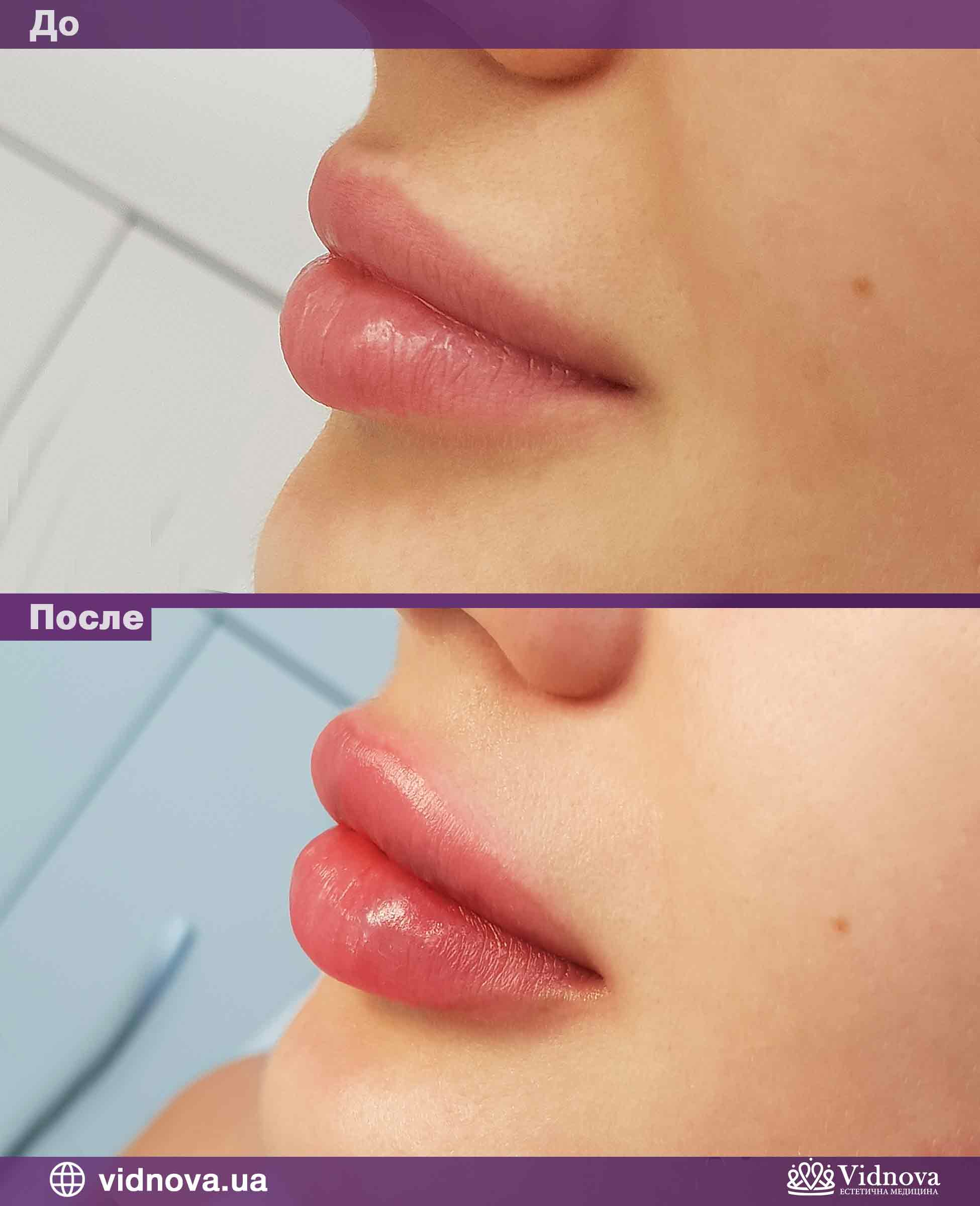 Увеличение губ: Фото До и После - Пример №4-3 - Клиника Vidnova