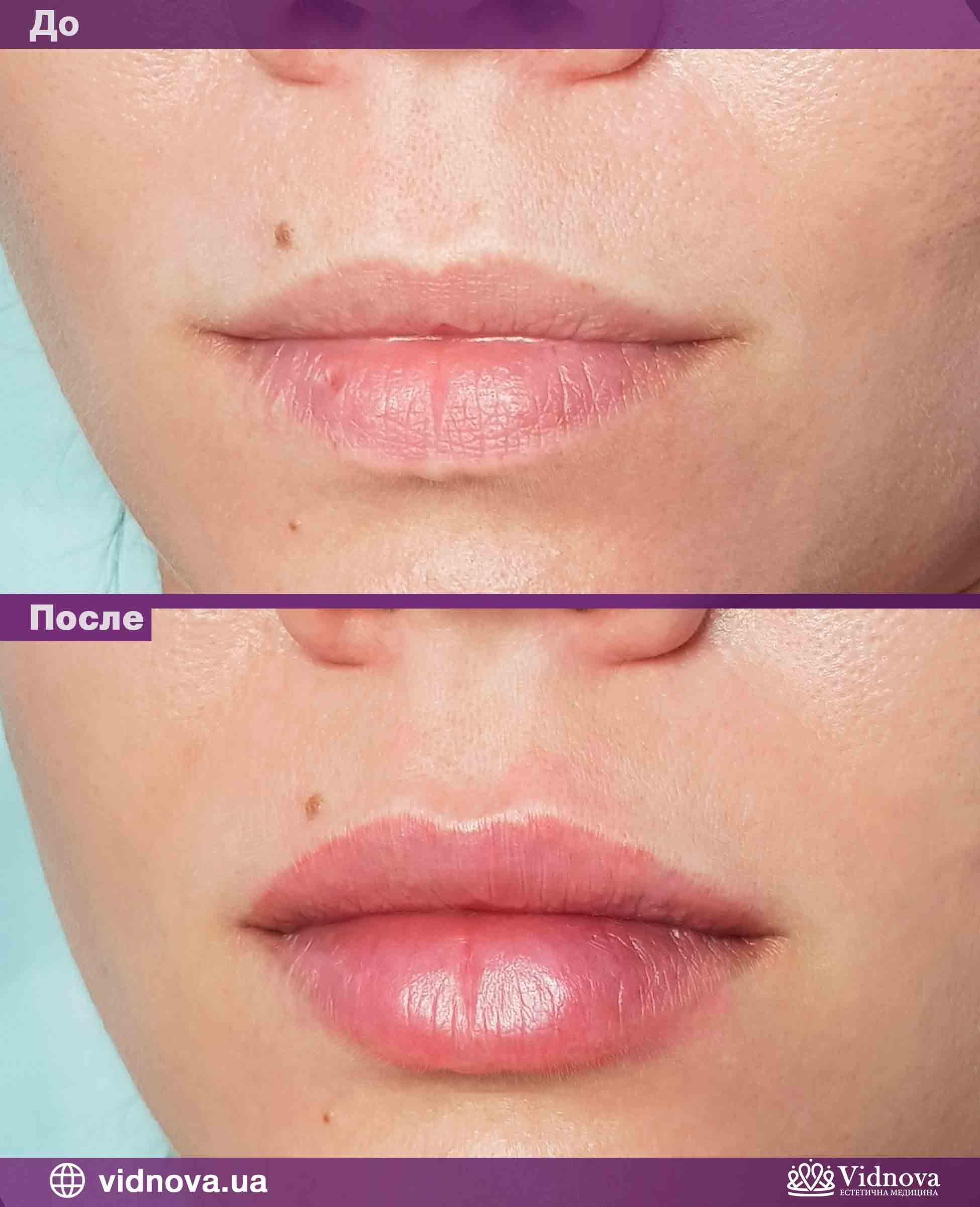 Увеличение губ: Фото До и После - Пример №1-2 - Клиника Vidnova