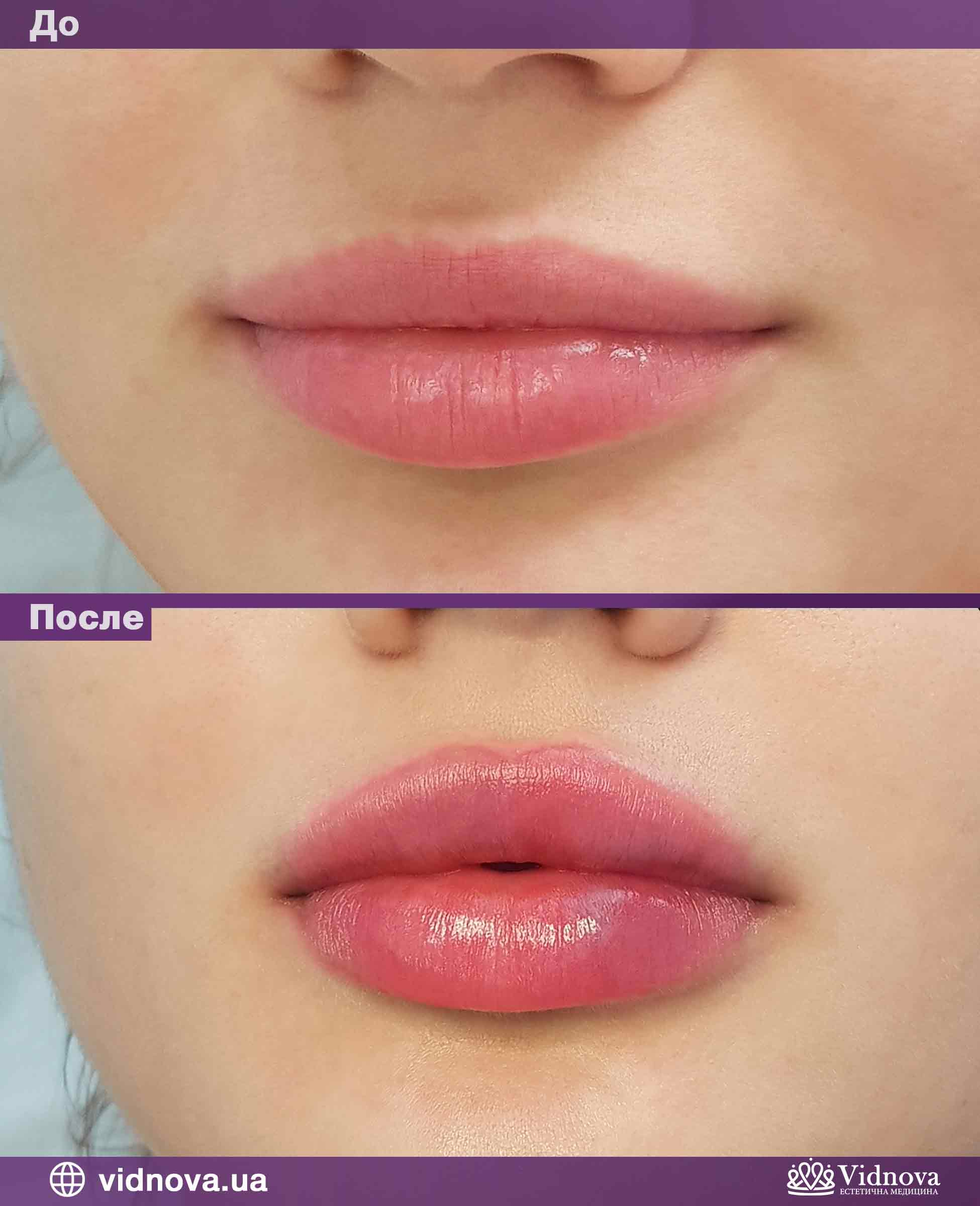 Увеличение губ: Фото До и После - Пример №4-2 - Клиника Vidnova