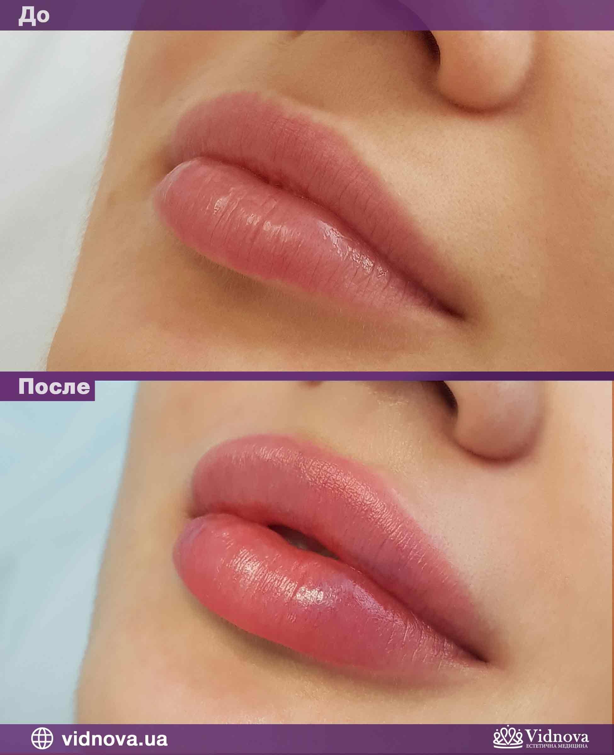 Увеличение губ: Фото До и После - Пример №4-1 - Клиника Vidnova