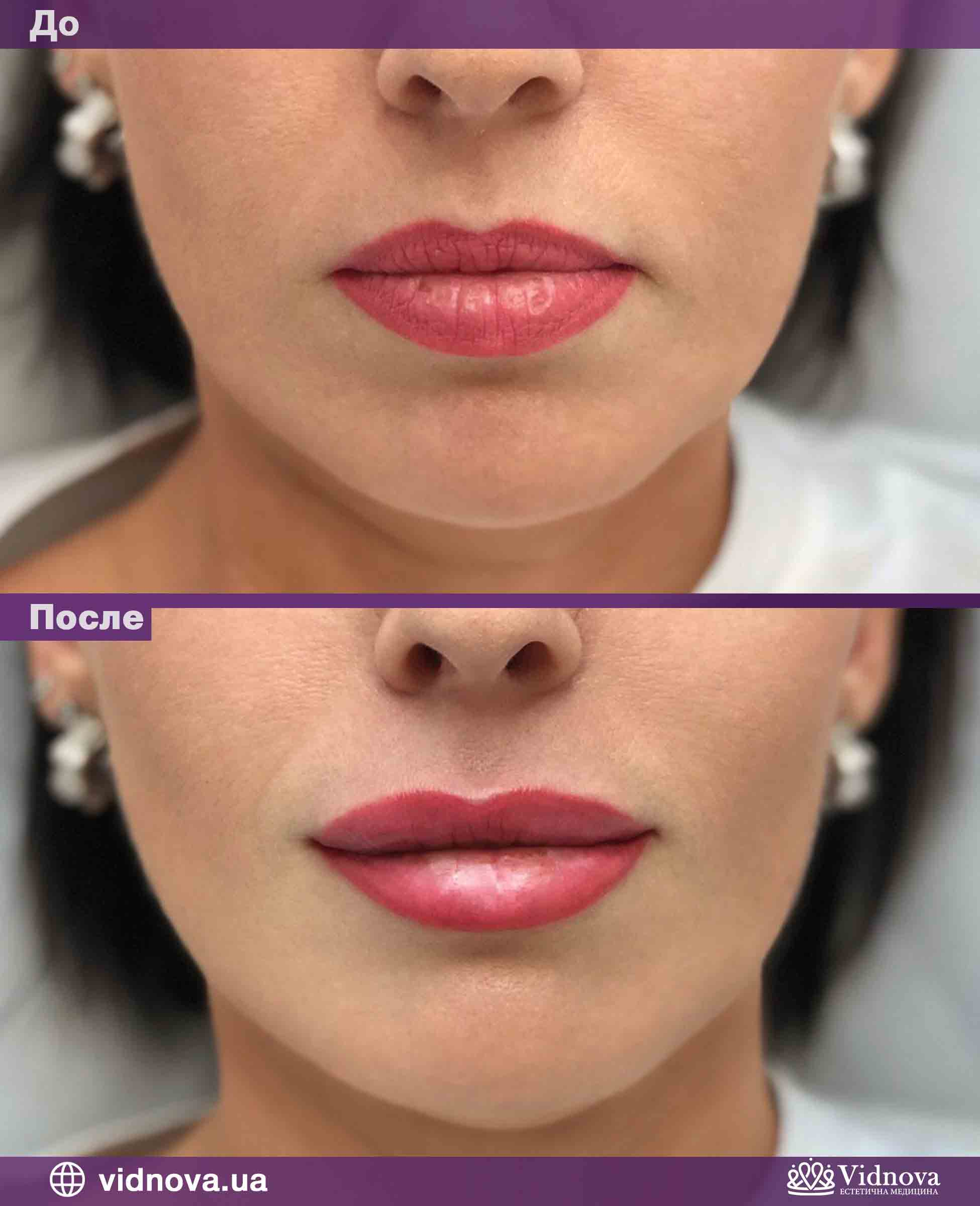 Увеличение губ: Фото До и После - Пример №3-1 - Клиника Vidnova