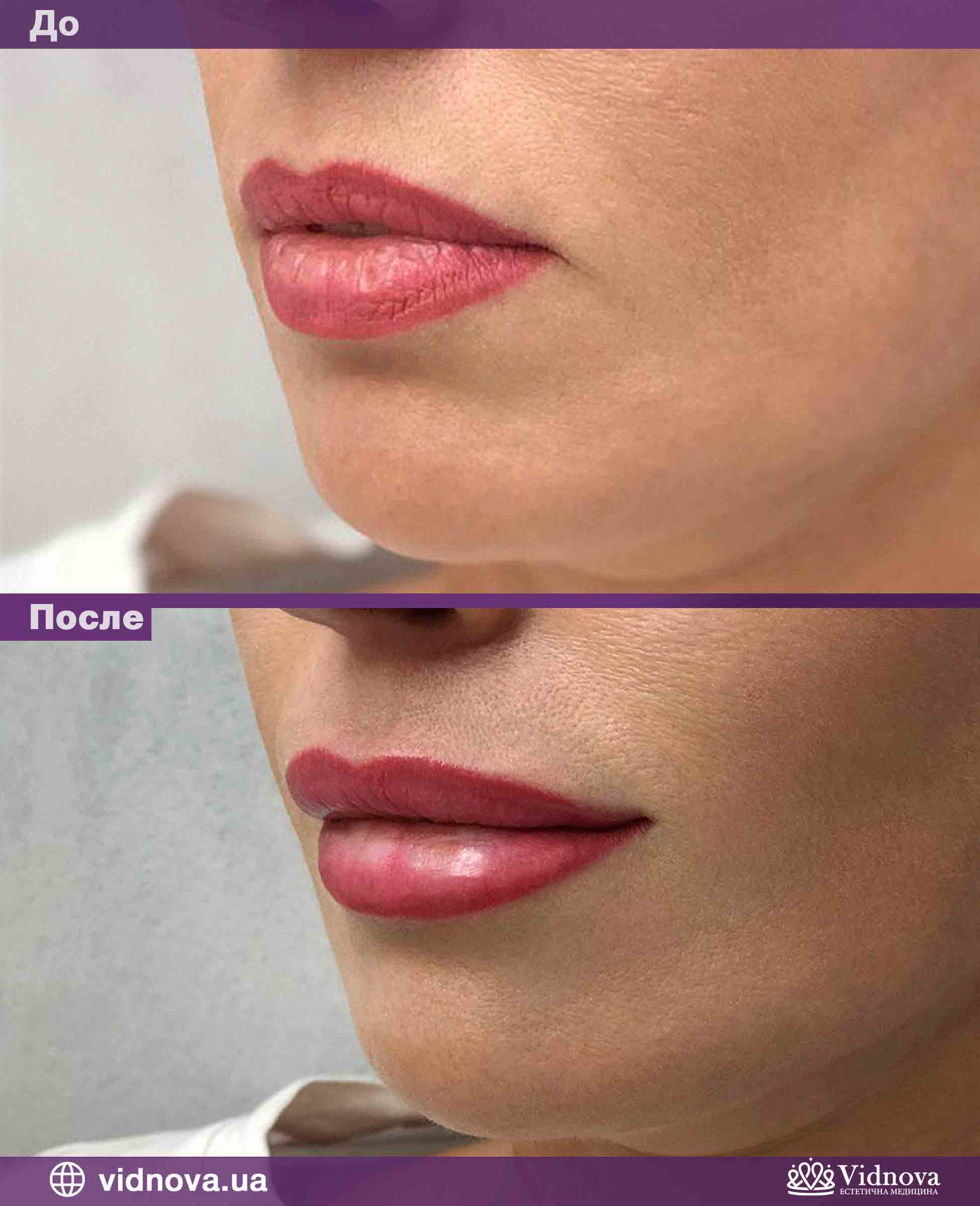 Увеличение губ: Фото До и После - Пример №3-3 - Клиника Vidnova