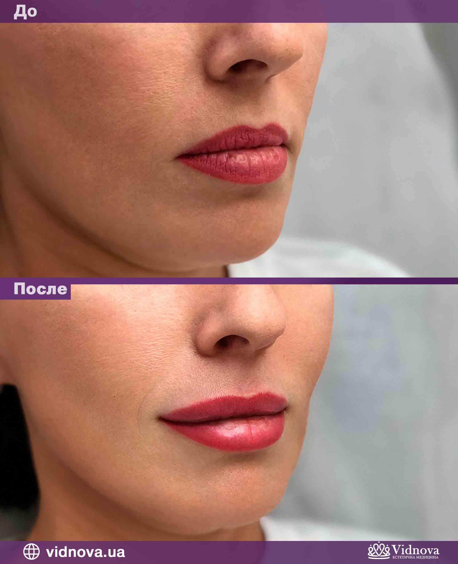 Увеличение губ: Фото До и После - Пример №3-2 - Клиника Vidnova
