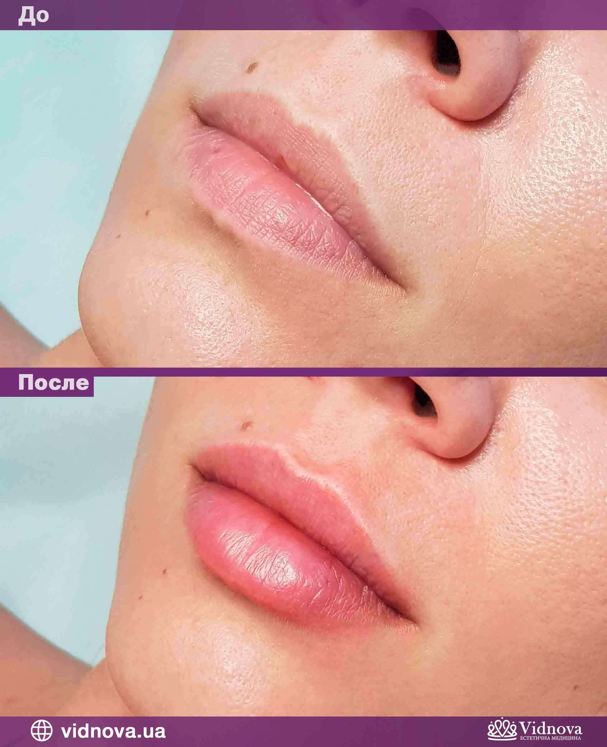 Увеличение губ: Фото До и После - Пример №1-1 - Клиника Vidnova