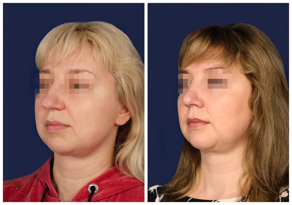 Эндопротезирование подбородка: Фото ДО и ПОСЛЕ - Пример №2-2 - Клиника Vidnova