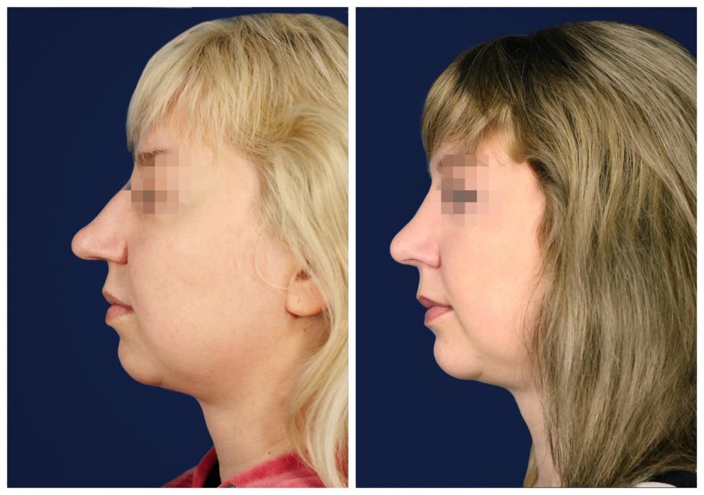 Эндопротезирование подбородка: Фото ДО и ПОСЛЕ - Пример №2-1 - Клиника Vidnova