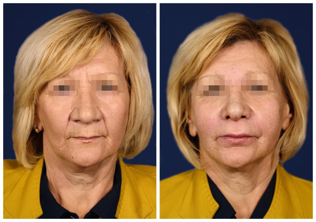 Липофилинг: Фото ДО и ПОСЛЕ - Пример №4-1 - Клиника Vidnova