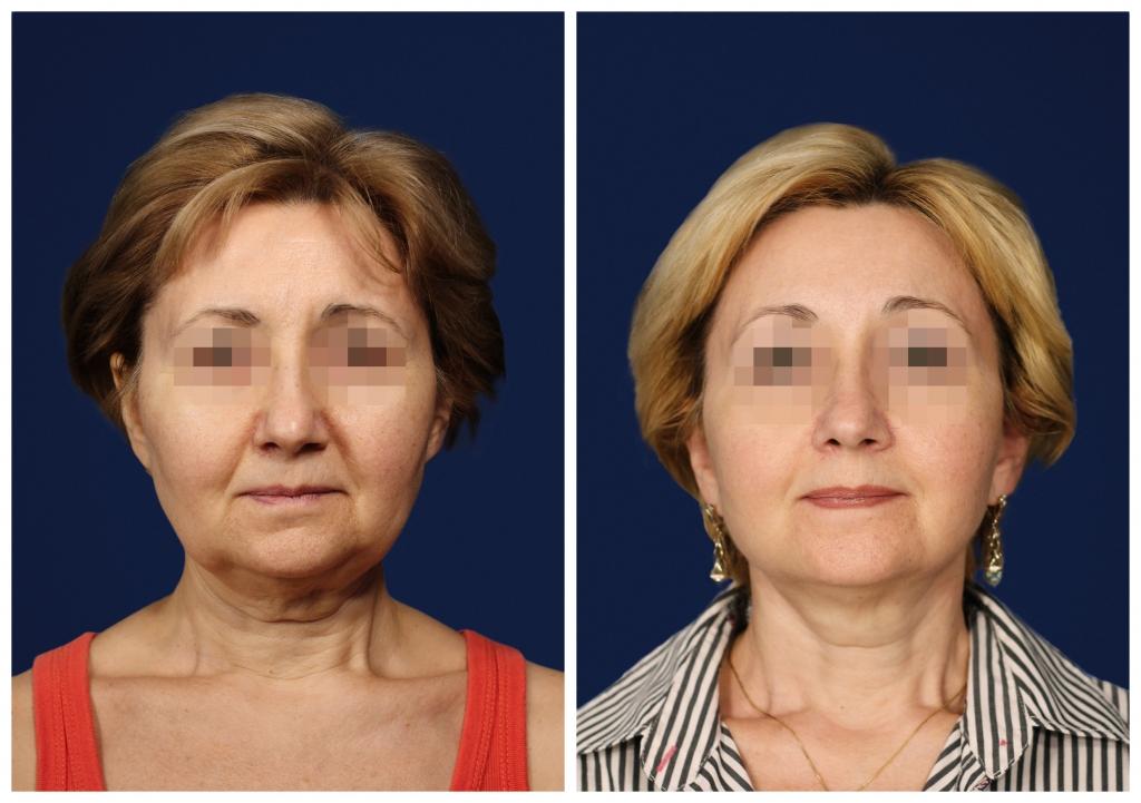Подтяжка лица и шеи: Фото ДО и ПОСЛЕ - Пример №2-3 - Клиника Vidnova