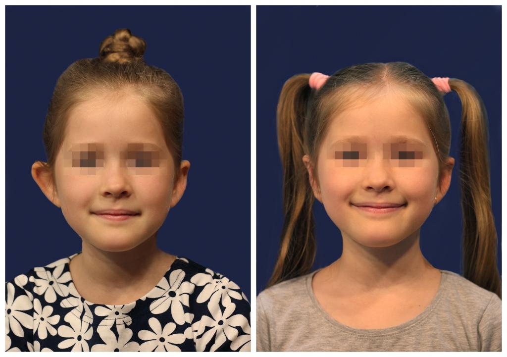 Отопластика: Фото До и После - Пример №10-1 - Клиника Vidnova