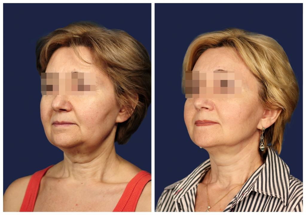Подтяжка лица и шеи: Фото ДО и ПОСЛЕ - Пример №2-2 - Клиника Vidnova