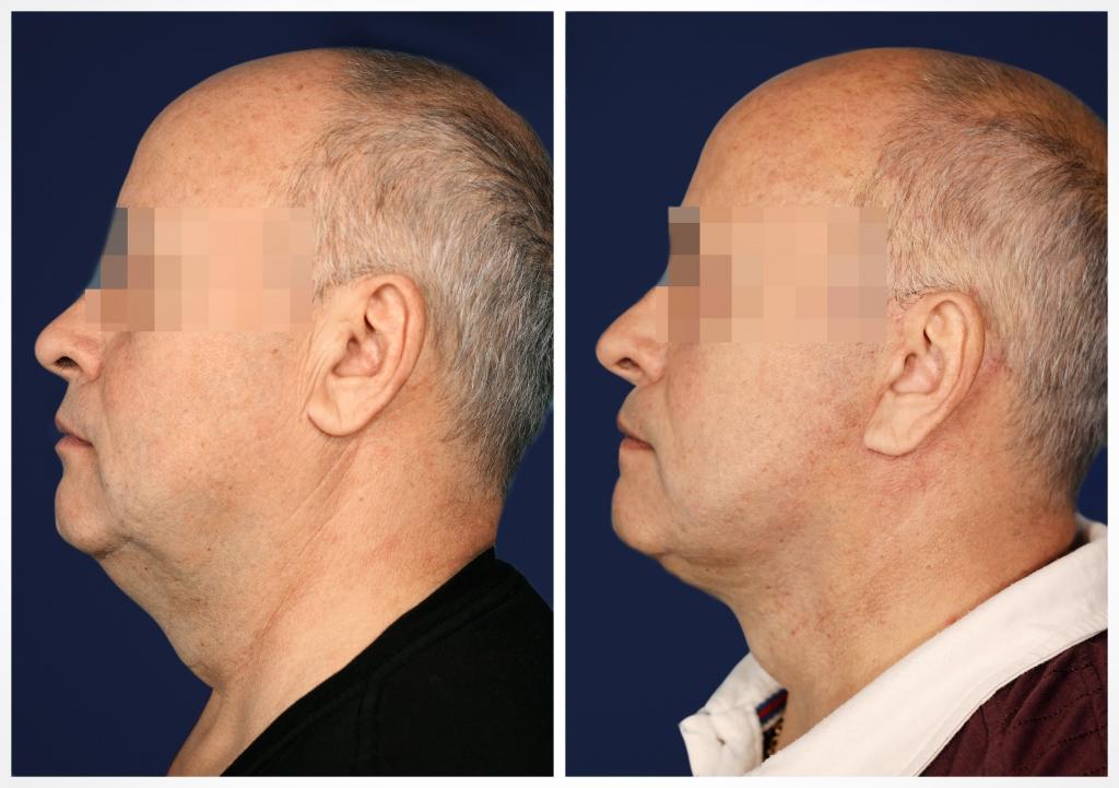 Подтяжка лица и шеи: Фото ДО и ПОСЛЕ - Пример №3-1 - Клиника Vidnova
