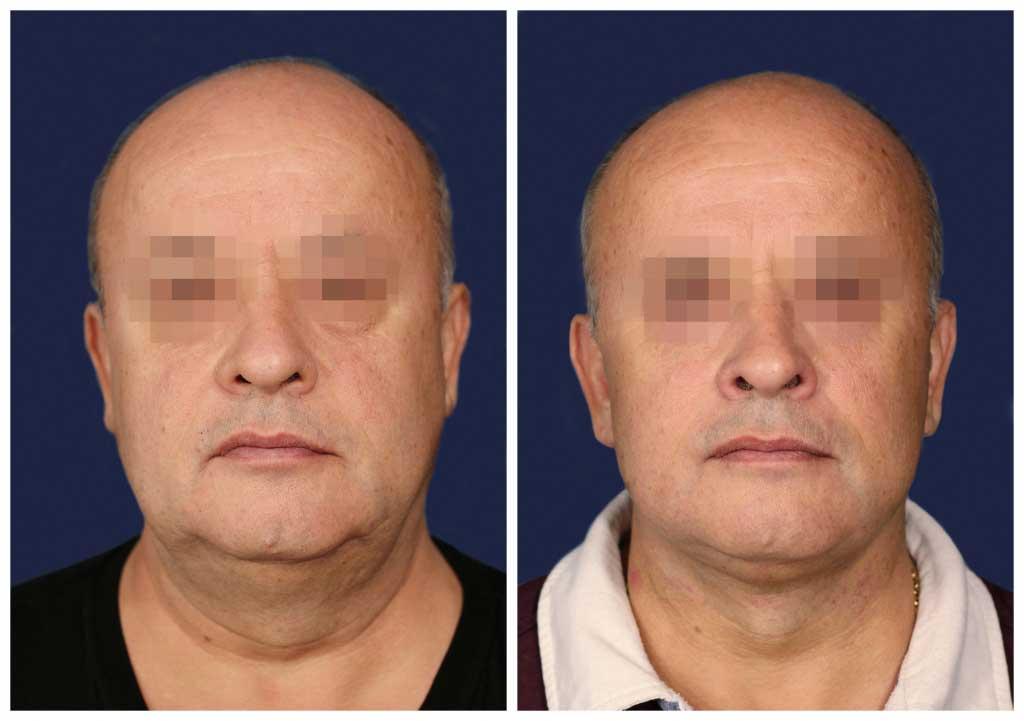 Подтяжка лица и шеи: Фото ДО и ПОСЛЕ - Пример №3-2 - Клиника Vidnova