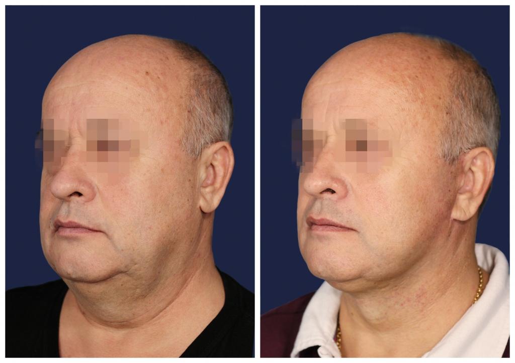 Подтяжка лица и шеи: Фото ДО и ПОСЛЕ - Пример №3-3 - Клиника Vidnova