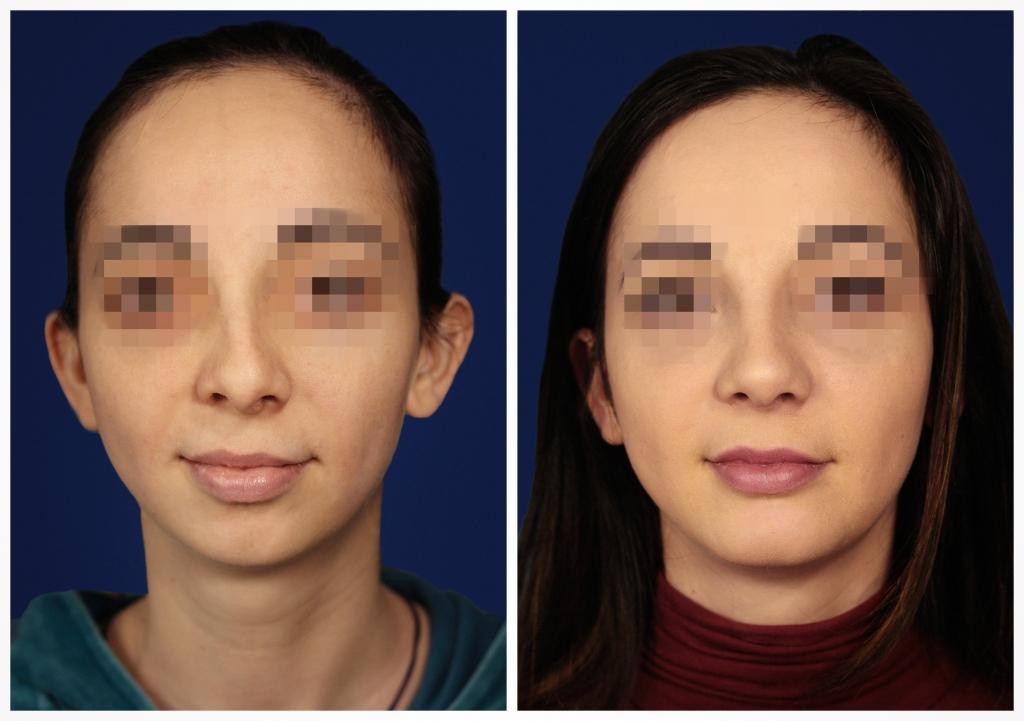 Эндопротезирование подбородка: Фото ДО и ПОСЛЕ - Пример №3-3 - Клиника Vidnova
