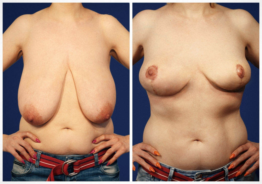 Уменьшение груди: Фото ДО и ПОСЛЕ - Пример №2-2 - Клиника Vidnova