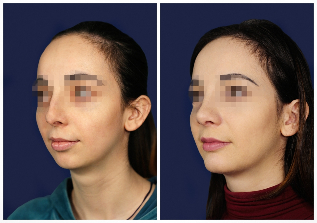 Эндопротезирование подбородка: Фото ДО и ПОСЛЕ - Пример №3-2 - Клиника Vidnova